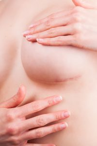 Scar after cosmetic breast surgery on naked body, plastic correction